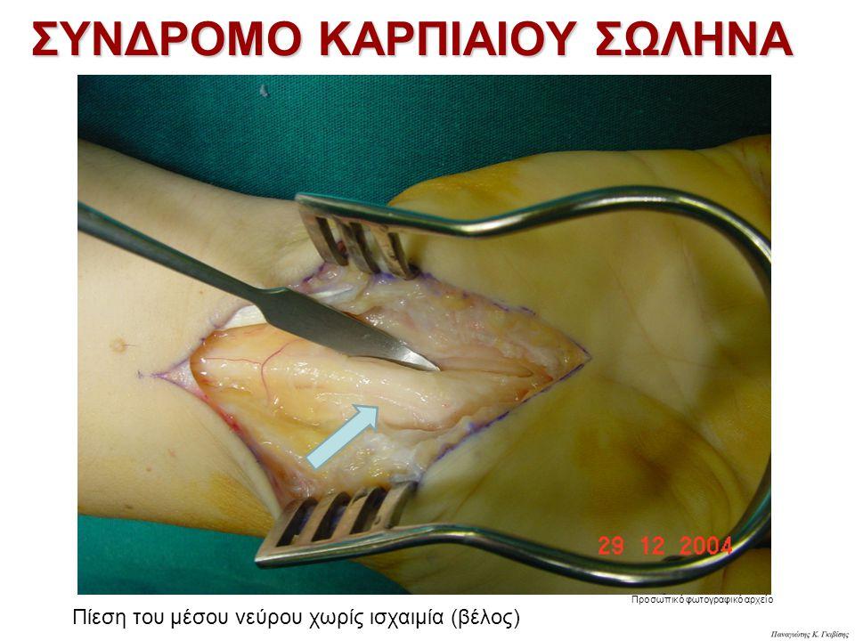 Προσωπικό φωτογραφικό αρχείο ΣΥΝΔΡΟΜΟ ΚΑΡΠΙΑΙΟΥ ΣΩΛΗΝΑ Πίεση του μέσου νεύρου χωρίς ισχαιμία (βέλος)