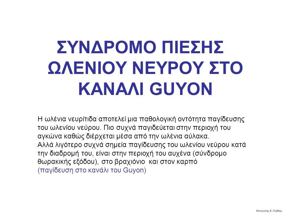ΣΥΝΔΡΟΜΟ ΠΙΕΣΗΣ ΩΛΕΝΙΟΥ ΝΕΥΡΟΥ ΣΤΟ ΚΑΝΑΛΙ GUYON Η ωλένια νευρίτιδα αποτελεί μια παθολογική οντότητα παγίδευσης του ωλενίου νεύρου. Πιο συχνά παγιδεύετ