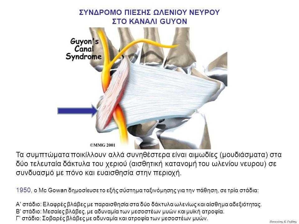ΣΥΝΔΡΟΜΟ ΠΙΕΣΗΣ ΩΛΕΝΙΟΥ ΝΕΥΡΟΥ ΣΤΟ ΚΑΝΑΛΙ GUYON Τα συμπτώματα ποικίλλουν αλλά συνηθέστερα είναι αιμωδίες (μουδιάσματα) στα δύο τελευταία δάκτυλα του χεριού (αισθητική κατανομή του ωλενίου νευρου) σε συνδυασμό με πόνο και ευαισθησία στην περιοχή.