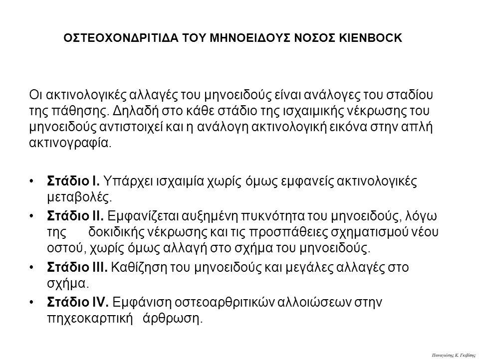 ΟΣΤΕΟΧΟΝΔΡΙΤΙΔΑ ΤΟΥ ΜΗΝΟΕΙΔΟΥΣ ΝΟΣΟΣ KIENBOCK Οι ακτινολογικές αλλαγές του μηνοειδούς είναι ανάλογες του σταδίου της πάθησης. Δηλαδή στο κάθε στάδιο τ
