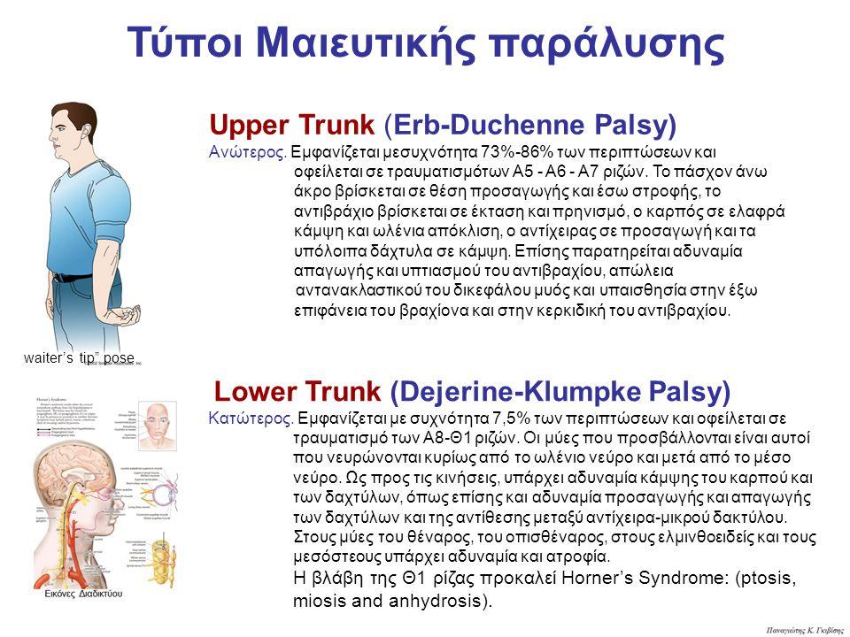 Upper Trunk (Erb-Duchenne Palsy) Ανώτερος. Εµφανίζεται µεσυχνότητα 73%-86% των περιπτώσεων και οφείλεται σε τραυµατισµότων Α5 - Α6 - Α7 ριζών. Το πάσχ