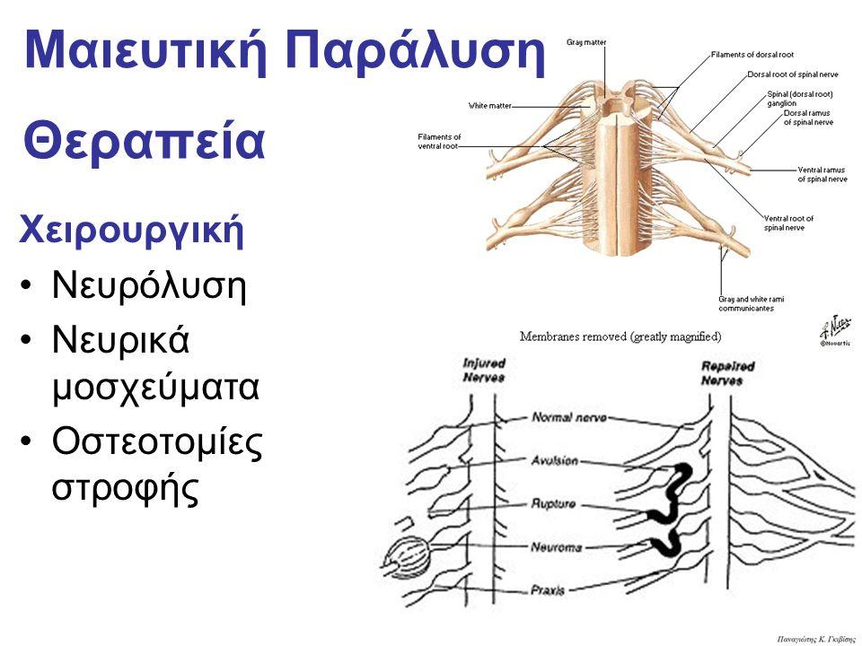 Θεραπεία Χειρουργική Νευρόλυση Νευρικά μοσχεύματα Οστεοτομίες στροφής Μαιευτική Παράλυση
