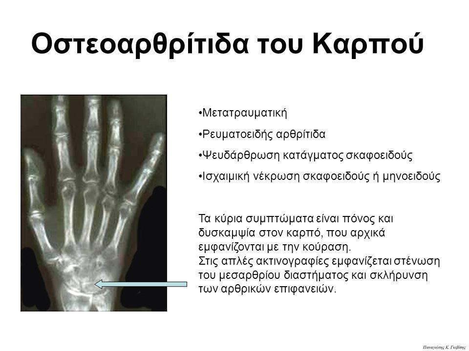 Οστεοαρθρίτιδα του Καρπού Μετατραυματική Ρευματοειδής αρθρίτιδα Ψευδάρθρωση κατάγματος σκαφοειδούς Ισχαιμική νέκρωση σκαφοειδούς ή μηνοειδούς Τα κύρια συμπτώματα είναι πόνος και δυσκαμψία στον καρπό, που αρχικά εμφανίζονται με την κούραση.