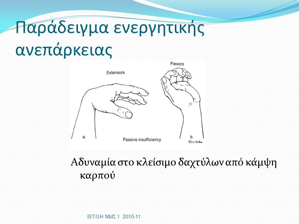 Παράδειγμα ενεργητικής ανεπάρκειας Αδυναμία στο κλείσιμο δαχτύλων από κάμψη καρπού IST/UH ΝΜΣ 1 2010-11