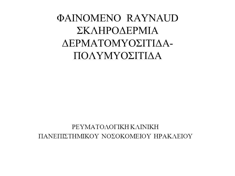 ΦΑΙΝΟΜΕΝΟ RAYNAUD'S Επεισόδια αγγειοσπασμού,εκλυόμενα με έκθεση στο κρύο ή συγκινησιακή φόρτιση, χαρακτηρίζεται από αλλαγές του χρώματος του δέρματος (ωχρότητα - κυάνωση-ερυθρότητα),αιμωδίες και πόνο των δακτύλων των χεριών