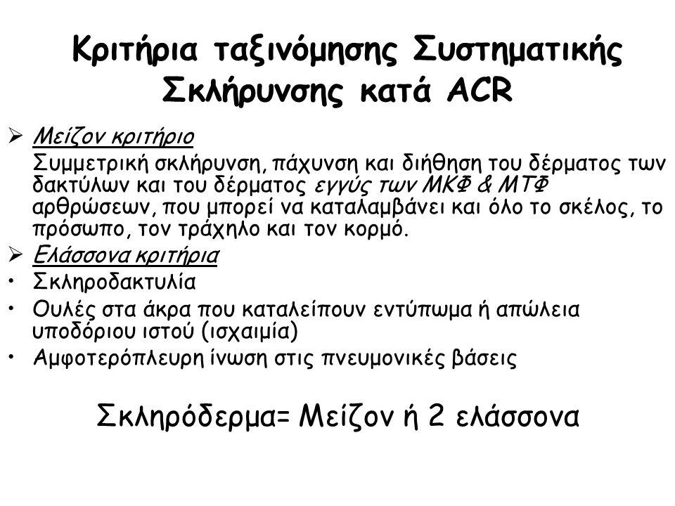 Κριτήρια ταξινόμησης Συστηματικής Σκλήρυνσης κατά ACR  Μείζον κριτήριο Συμμετρική σκλήρυνση, πάχυνση και διήθηση του δέρματος των δακτύλων και του δέ