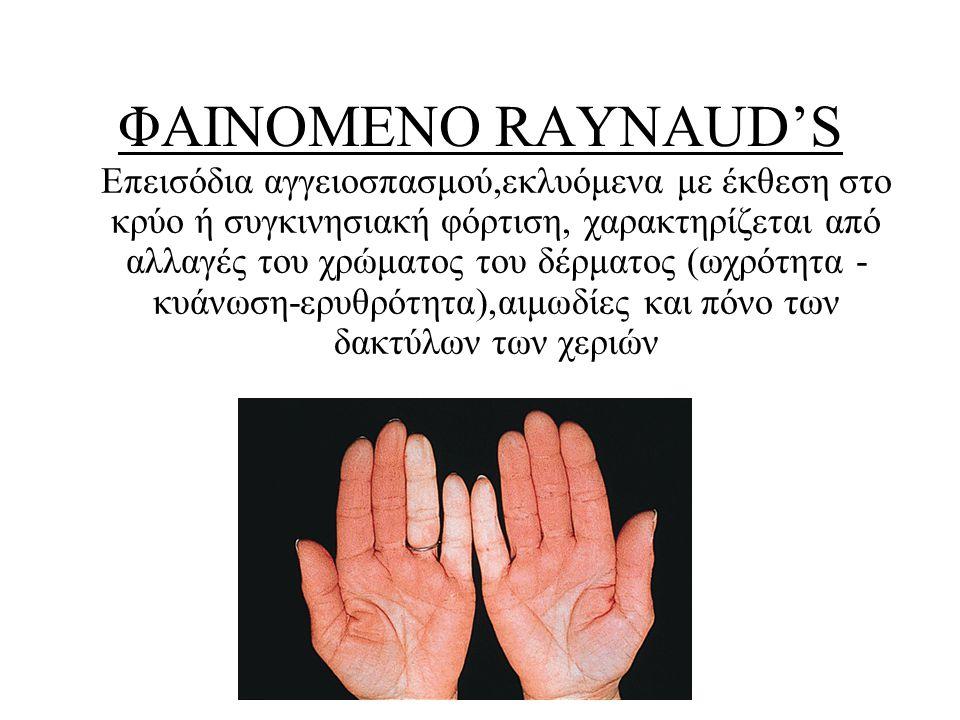 ΦΑΙΝΟΜΕΝΟ RAYNAUD'S Επεισόδια αγγειοσπασμού,εκλυόμενα με έκθεση στο κρύο ή συγκινησιακή φόρτιση, χαρακτηρίζεται από αλλαγές του χρώματος του δέρματος