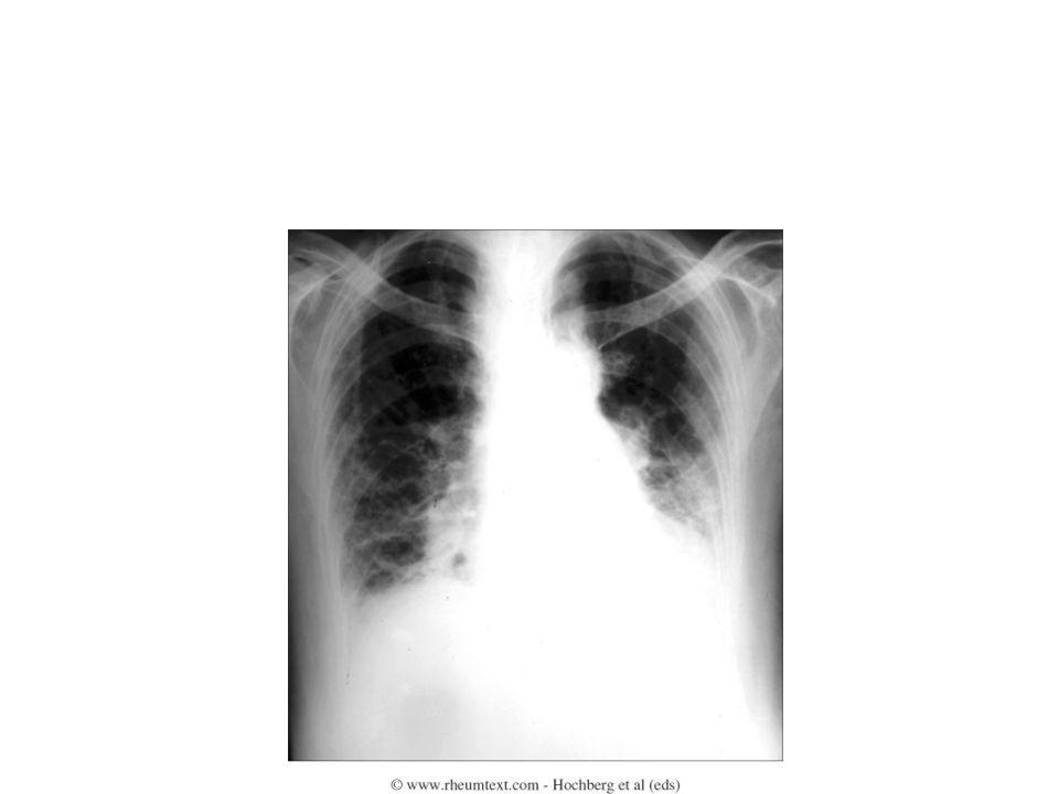 ΣΚΛΗΡΟΔΕΡΜΑ -ΠΝΕΥΜΟΝΕΣ Β.Πνευμονική Υπέρταση Περιορισμένο σκληρόδερμα Δύσπνοια Λειτουργικές δοκιμασίες (DL CO ) Ηχοκαρδιογράφημα:υπερτροφία ΔΕ κοιλίας Ήπια νόσος : αναστολείς διαύλων Θεραπεία Ca++ Βαριά νόσος : μποσεντάνη προστακυκλίνη
