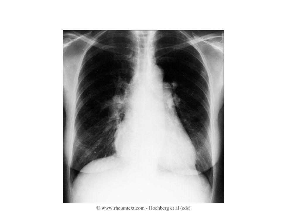 ΣΚΛΗΡΟΔΕΡΜΑ-ΝΕΦΡΟΙ Διάχυτο σκληρόδερμα (στα πρώτα 2-4 χρόνια) Νεφρική κρίση : αιφνίδια εμφάνιση αρτηριακής υπέρτασης, ολιγουρίας νεφρική ανεπάρκεια Υψηλές δόσεις(>10 mg πρενδιζολόνης) μπορεί να επιταχύνουν τη νεφρική κρίση Αναστολείς του μετατρεπτικού Θεραπεία ενζύμου της αγγειοτενσίνης Αιμοκάθαρση