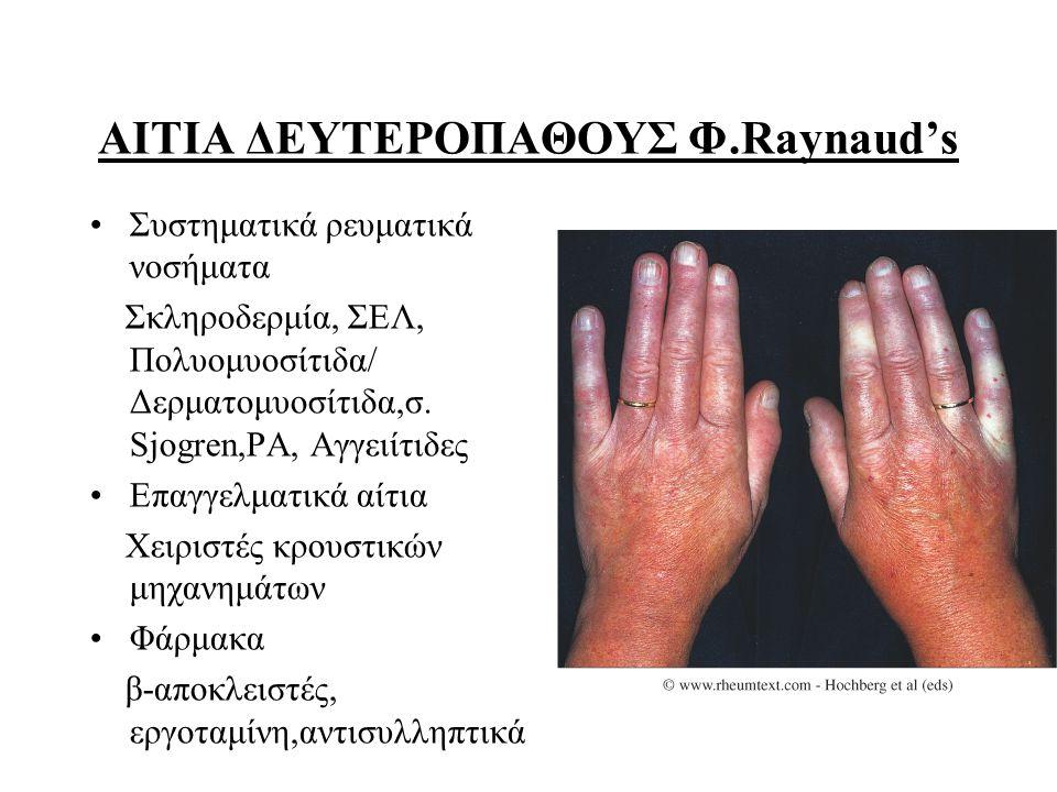 ΑΙΤΙΑ ΔΕΥΤΕΡΟΠΑΘΟΥΣ Φ.Raynaud's Συστηματικά ρευματικά νοσήματα Σκληροδερμία, ΣΕΛ, Πολυομυοσίτιδα/ Δερματομυοσίτιδα,σ. Sjogren,ΡΑ, Αγγειίτιδες Επαγγελμ