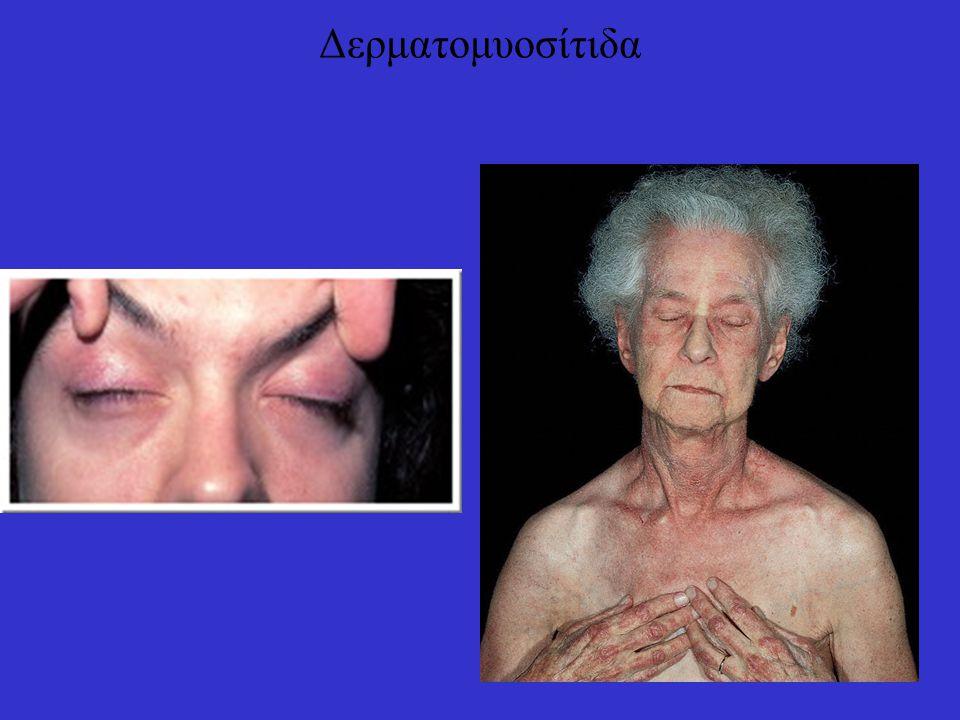 Δερματομυοσίτιδα: ασβεστοποιήσεις