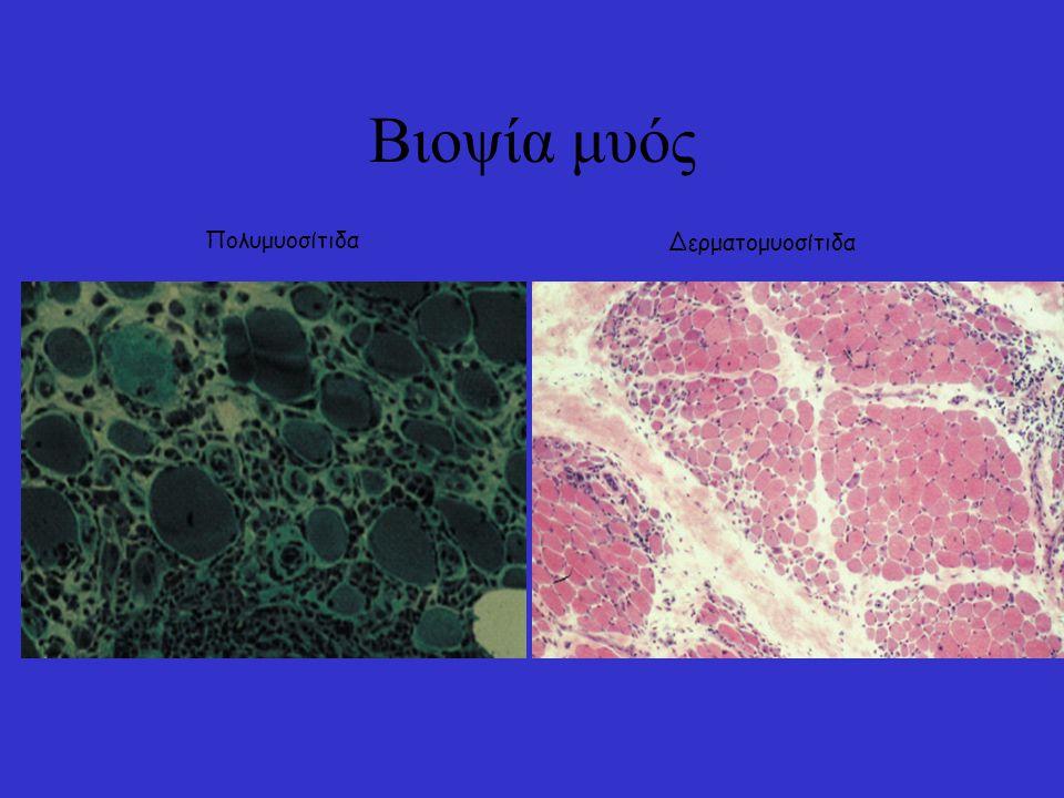 Πολυμυοσίτιδα-δερματομυοσίτιδα: Διαφορές στην παθογένεια Πολυμυοσίτιδα: CD8 T cell επαγόμενη βλάβη Δερματομυοσίτιδα: Βλάβη επαγόμενη από το συμπλήρωμα (MAC) –CD4+ Με προσβολή των αγγείων στην περιφέρεια του μυΐκού δεματίου