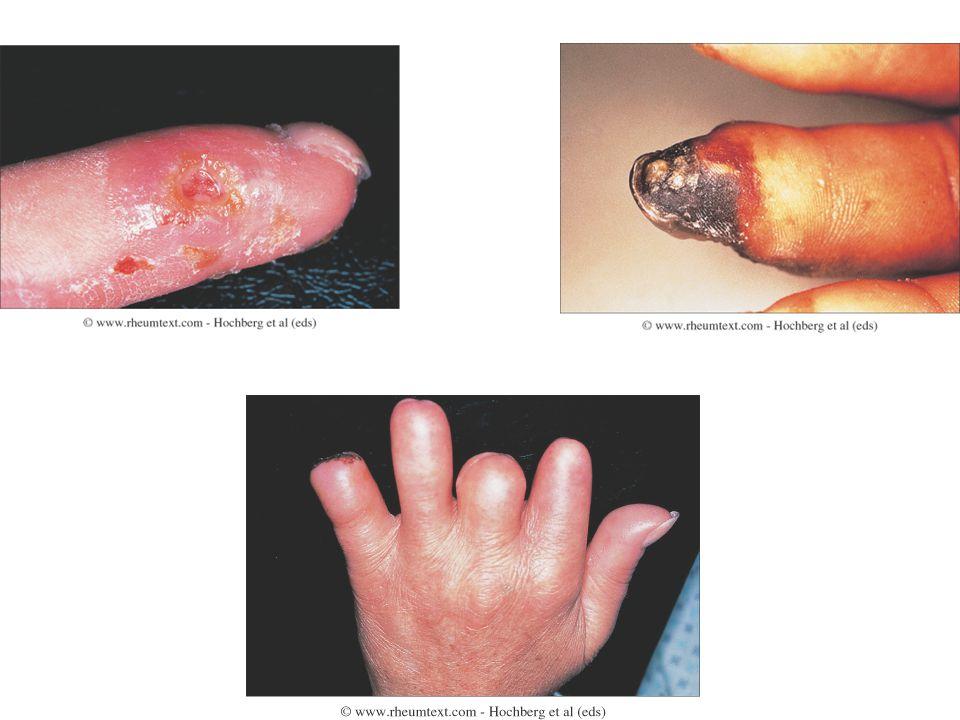 ΕΚΤΙΜΗΣΗ ΑΣΘΕΝΟΥΣ ΜΕ ΦΑΙΝΟΜΕΝΟ RAYNAUD ΙστορικόΣυμπτώματαΦυσική εξέτασηΕργαστηριακά Επάγγελμα Τραύμα Κάπνισμα Φάρμακα Εξάνθημα Αρθραλγίες σ.καρπιαίου σωλήνα Αδυναμία Πυρετός Καταβολή Περιφερικός σφυγμός Φυσήματα Έλκη στις κορυφές των δακτύλων Διαταραχές των τριχοειδών της ονυχικής πτυχής Οίδημα των δακτύλων Γενική αίματος ΤΚΕ Κρυοσφαιρίνες Ηλεκτροφόρηση λευκωμάτων,ΑΝΑ, anti-Scl-70
