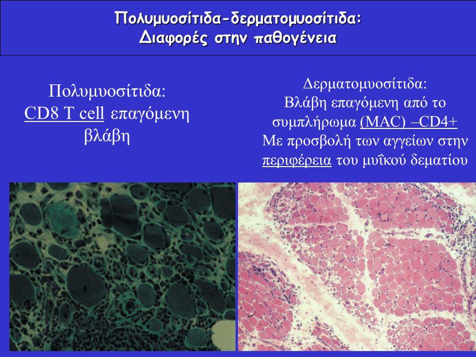 Πολυμυοσίτιδα-δερματομυοσίτιδα: Διαφορές στην παθογένεια Πολυμυοσίτιδα: CD8 T cell επαγόμενη βλάβη Δερματομυοσίτιδα: Βλάβη επαγόμενη από το συμπλήρωμα
