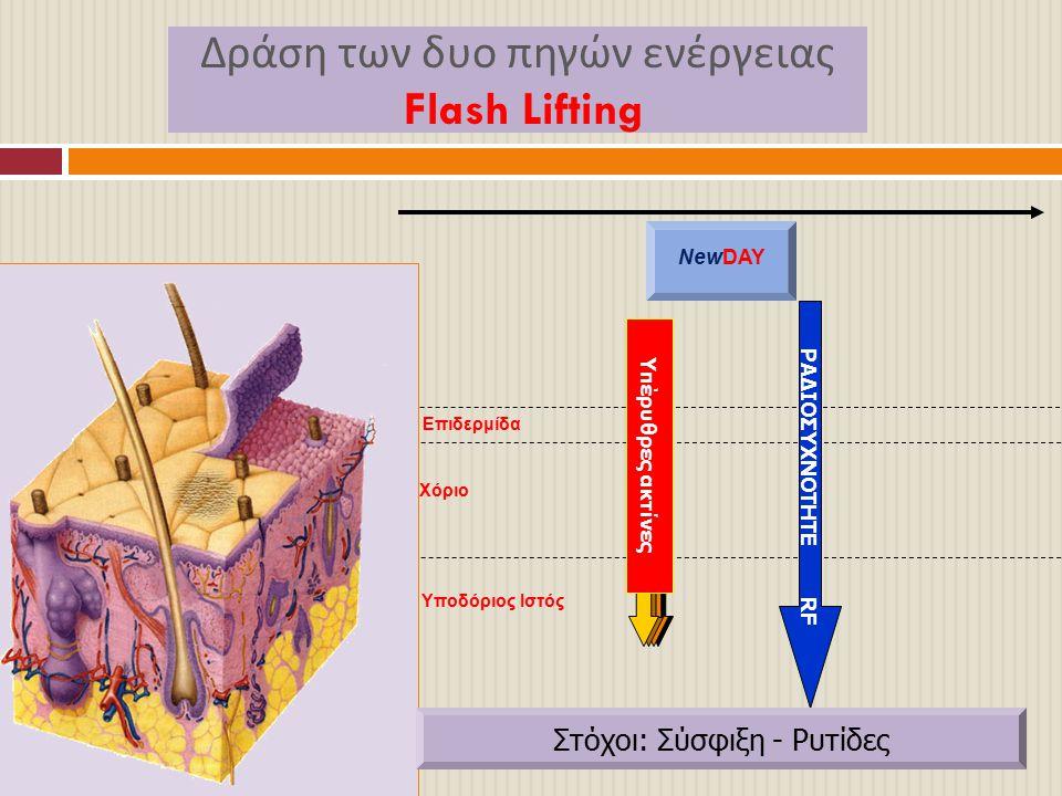 Δράση των δυο πηγών ενέργειας Flash Lifting Επιδερμίδα Χόριο Υποδόριος Ιστός NewDAY ΡΑΔΙΟΣΥΧΝΟΤΗΤΕ RF Υπέρυθρες ακτίνες Στόχοι: Σύσφιξη - Ρυτίδες
