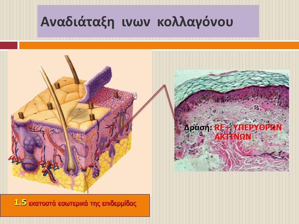 Αναδιάταξη ινων κολλαγόνου Δράση: RF+ ΥΠΕΡΥΘΡΩΝ ΑΚΤΙΝΩΝ 1.5 εκατοστά εσωτερικά της επιδερμίδας