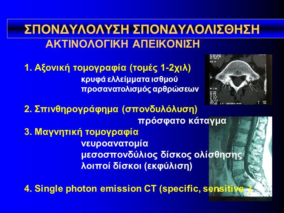 ΣΠΟΝΔΥΛΟΛYΣΗ ΣΠΟΝΔΥΛΟΛΙΣΘΗΣΗ ΑΚΤΙΝΟΛΟΓΙΚΗ ΑΠΕΙΚΟΝΙΣΗ 1. Αξονική τομογραφία (τομές 1-2χιλ) κρυφά ελλείμματα ισθμού προσανατολισμός αρθρώσεων 2. Σπινθηρ