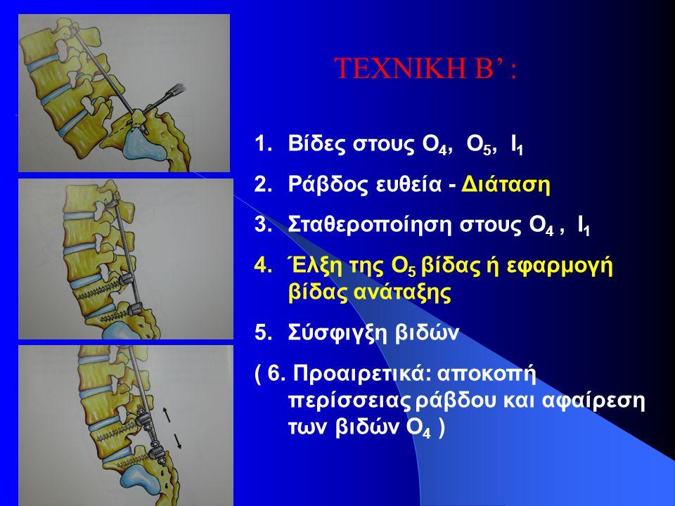 ΤΕΧΝΙΚΗ Β' : 1.Βίδες στους Ο 4, Ο 5, Ι 1 2.Ράβδος ευθεία - Διάταση 3.Σταθεροποίηση στους Ο 4, Ι 1 4.Έλξη της Ο 5 βίδας ή εφαρμογή βίδας ανάταξης 5.Σύσ