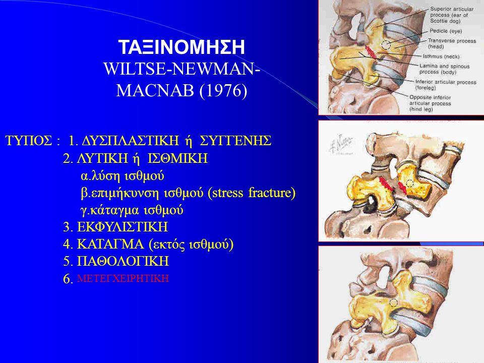 ΤΑΞΙΝΟΜΗΣΗ WILTSE-NEWMAN- MACNAB (1976) ΤΥΠΟΣ : 1. ΔΥΣΠΛΑΣΤΙΚΗ ή ΣΥΓΓΕΝΗΣ 2. ΛΥΤΙΚΗ ή ΙΣΘΜΙΚΗ α.λύση ισθμού β.επιμήκυνση ισθμού (stress fracture) γ.κά