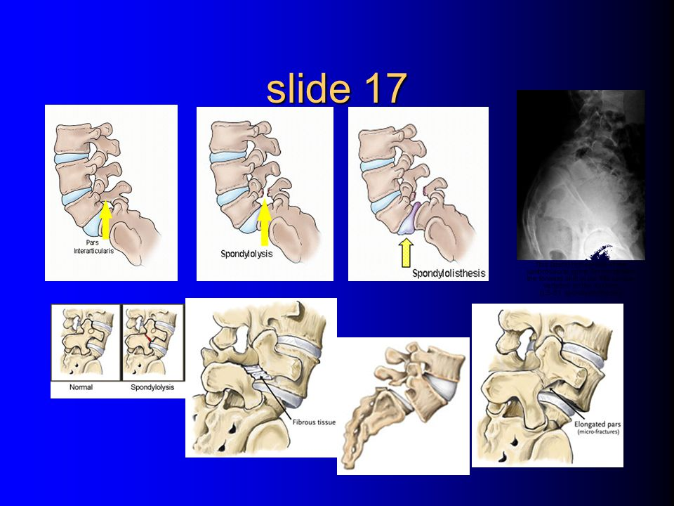 slide 17