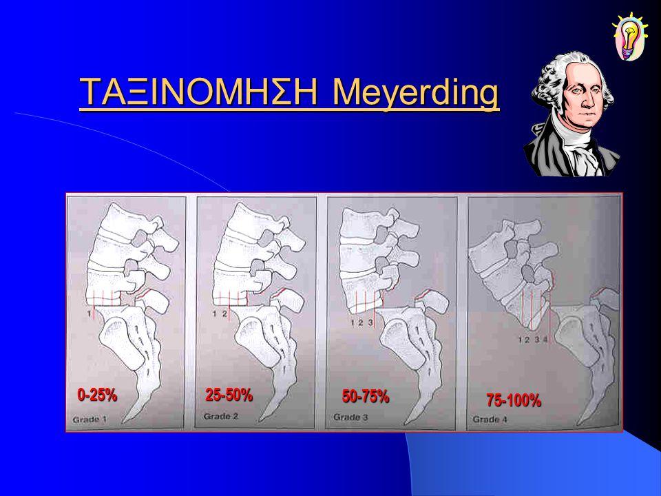 ΛΥΤΙΚΗ Η ΙΣΘΜΙΚΗ ΣΠΟΝΔΥΛΟΛΙΣΘΗΣΗ ΧΕΙΡΟΥΡΓΙΚΗ ΘΕΡΑΠΕΙΑ ΑΠΟΤΕΛΕΣΜΑΤΑ 360º 360º οπισθοπλάγια μόνο άριστα 75% 45% Άριστα+καλά 97% 95% Σπονδυλοδεσία(fusion) Rosa et al J Neurosurgery 2003 Bradford et al JBJS 1990 Smith- Bohlman JBJS 1990