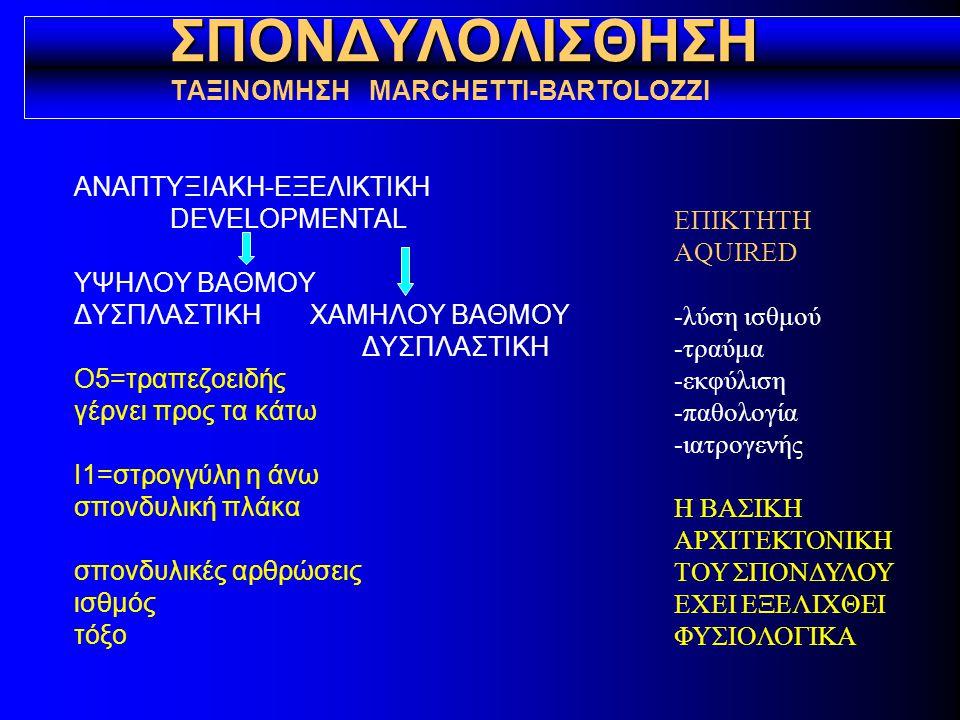 ΣΠΟΝΔΥΛΟΛΥΣΗ ΣΠΟΝΔΥΛΟΛΙΣΘΗΣΗ ΚΛΙΝΙΚΗ ΕΙΚΟΝΑ ασυμπτωματική συμπτωματική οσφυαλγία (οξεία, χρόνια) ισχιαλγία ανταλγική σκολίωση μυϊκός σπασμός υπερλόρδωση προεξοχή ακανθώδους κοντός κορμός παράξενο βάδισμα (σπασμός οπ.μηριαίων) νευρολογική σημειολογία