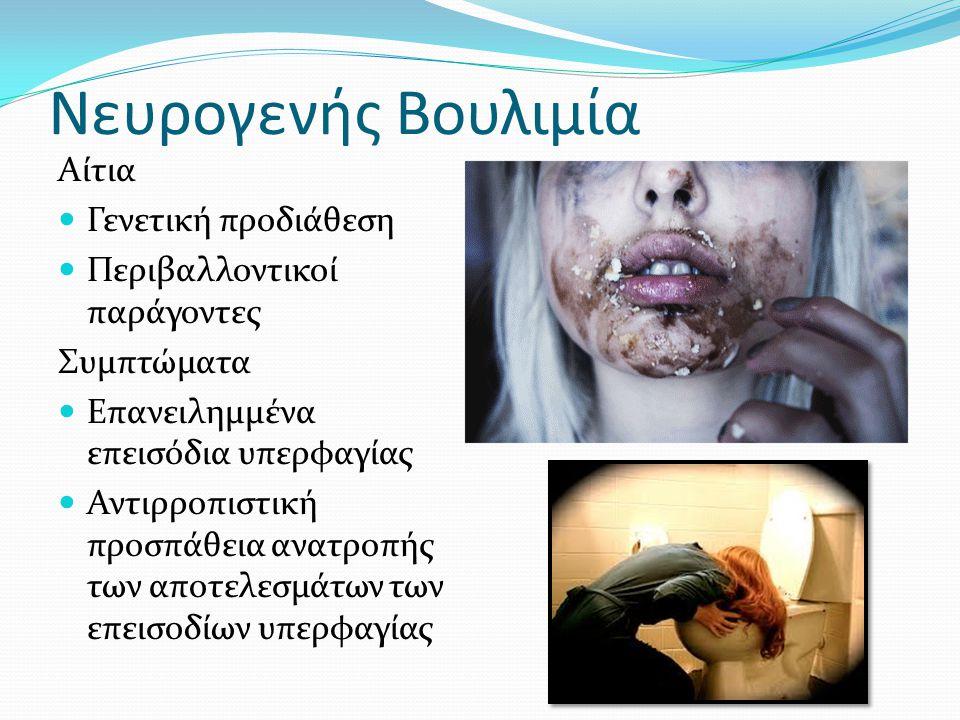 Ορισμός Η βουλιμία είναι ένας όρος που χρησιμοποιείται για να περιγράψει μία παθολογική κατάσταση κατά την οποία ο ασθενής βιώνει πιεστικές συναισθημα