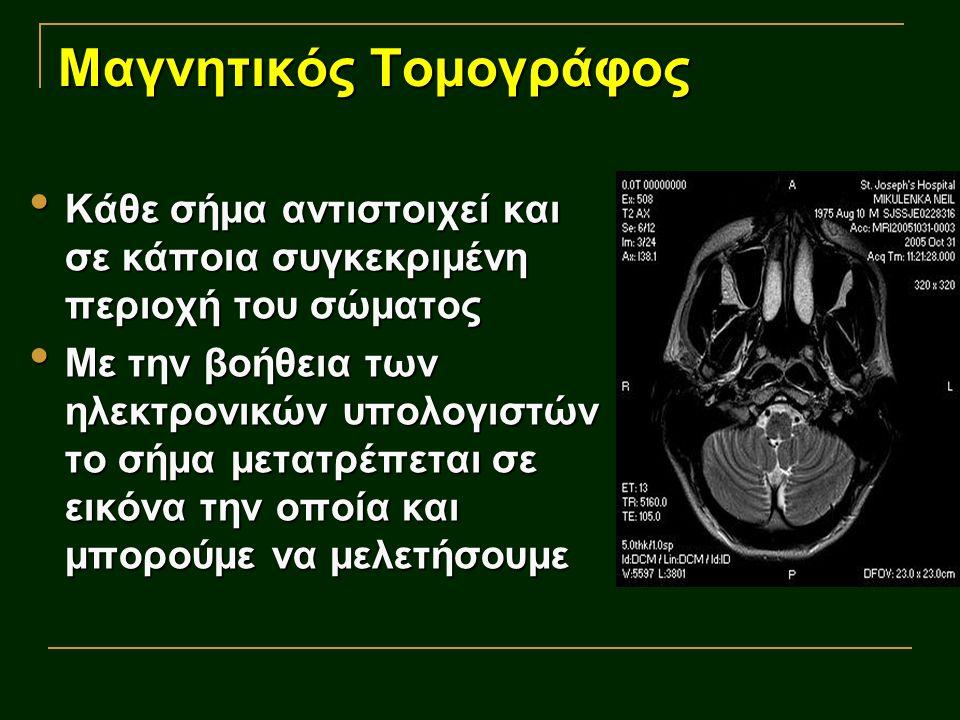 Μαγνητικός Τομογράφος Κάθε σήμα αντιστοιχεί και σε κάποια συγκεκριμένη περιοχή του σώματος Κάθε σήμα αντιστοιχεί και σε κάποια συγκεκριμένη περιοχή το