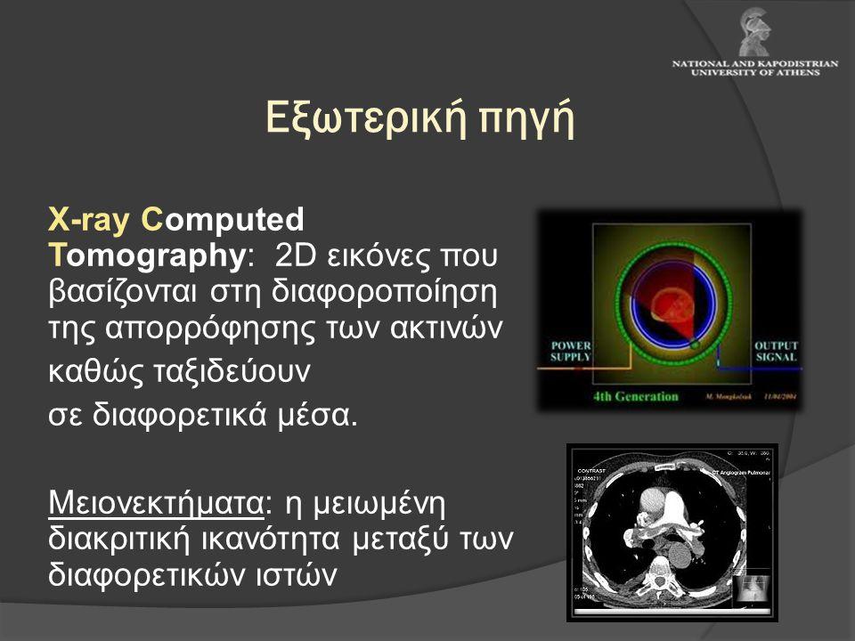 Εξωτερική πηγή Χ-ray Computed Tomography: 2D εικόνες που βασίζονται στη διαφοροποίηση της απορρόφησης των ακτινών καθώς ταξιδεύουν σε διαφορετικά μέσα