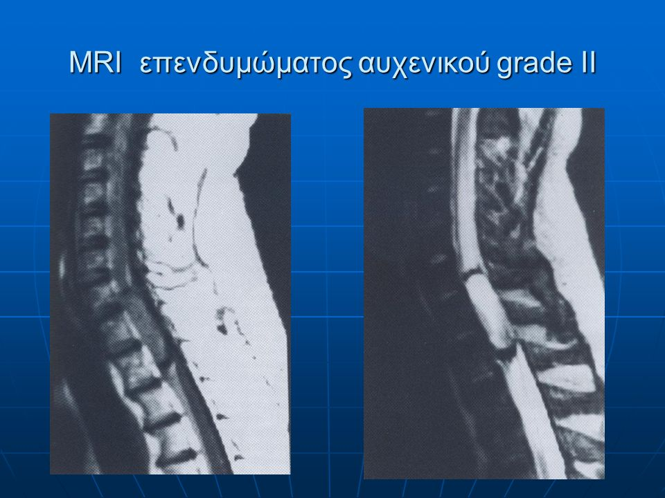 MRI αστροκυττώματος του κώνου grade II