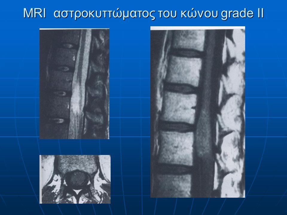 MRI στη κατά πλάκα σκλήρυνση