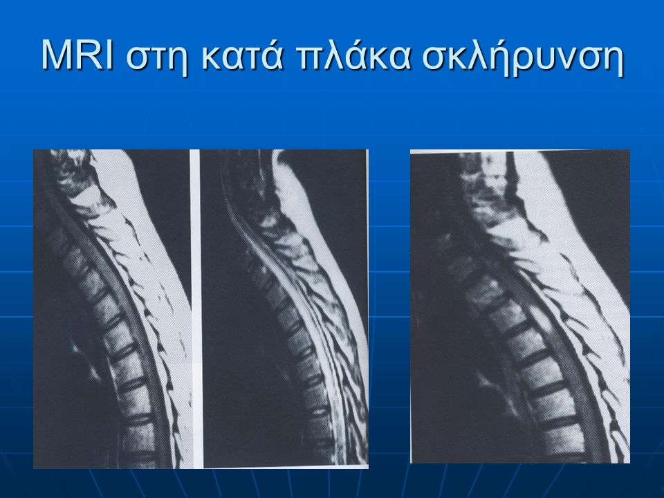 MRI επενδυμώματος grade II