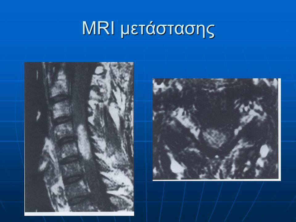 MRI μελανώματος