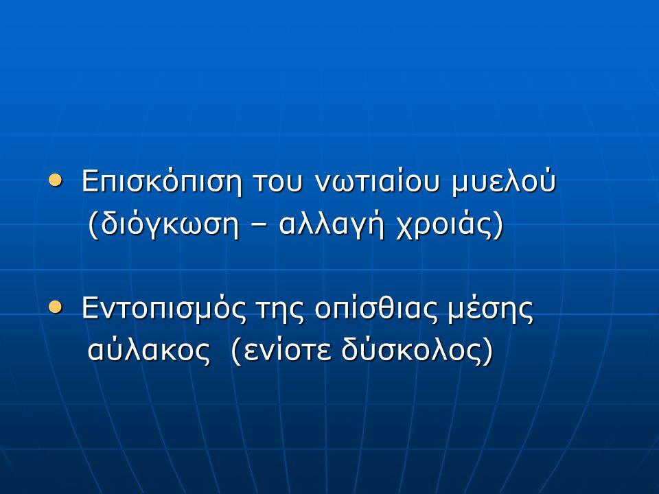 Επισκόπιση του νωτιαίου μυελού Επισκόπιση του νωτιαίου μυελού (διόγκωση – αλλαγή χροιάς) (διόγκωση – αλλαγή χροιάς) Εντοπισμός της οπίσθιας μέσης Εντοπισμός της οπίσθιας μέσης αύλακος (ενίοτε δύσκολος) αύλακος (ενίοτε δύσκολος)