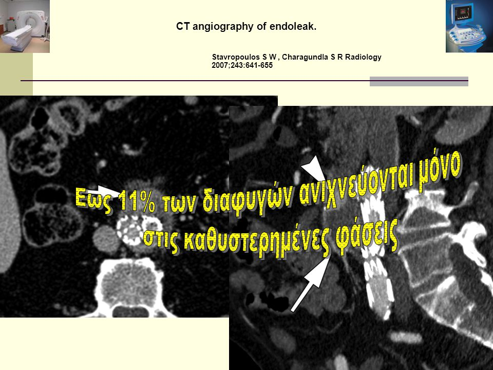 CT angiography of endoleak. Stavropoulos S W, Charagundla S R Radiology 2007;243:641-655