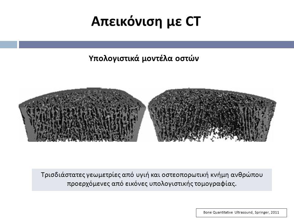 Bone Quantitative Ultrasound, Springer, 2011 Απεικόνιση με CT Υπολογιστικά μοντέλα οστών Τρισδιάστατες γεωμετρίες από υγιή και οστεοπορωτική κνήμη ανθ