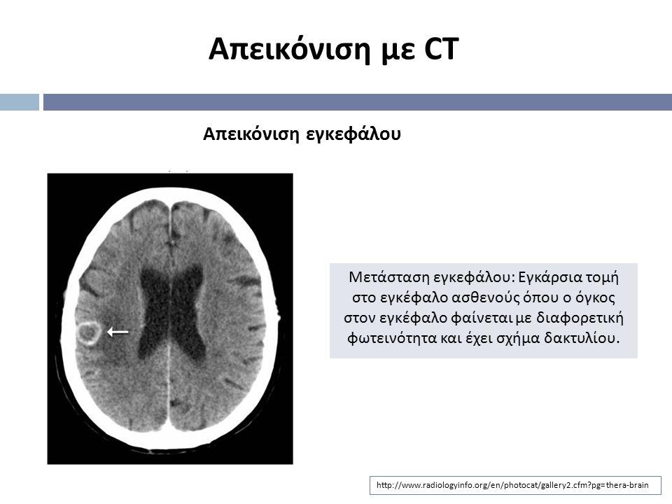 http://www.radiologyinfo.org/en/photocat/gallery2.cfm?pg=thera-brain Απεικόνιση εγκεφάλου Απεικόνιση με CT Μετάσταση εγκεφάλου : Εγκάρσια τομή στο εγκ