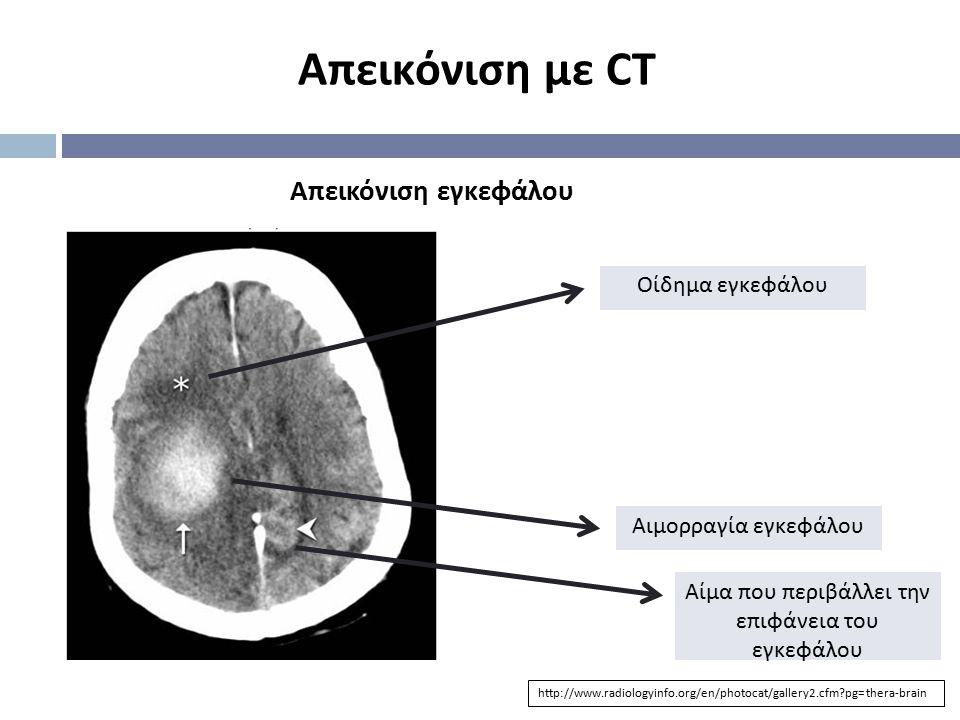 Απεικόνιση εγκεφάλου Απεικόνιση με CT Οίδημα εγκεφάλου Αιμορραγία εγκεφάλου Αίμα που περιβάλλει την επιφάνεια του εγκεφάλου http://www.radiologyinfo.o