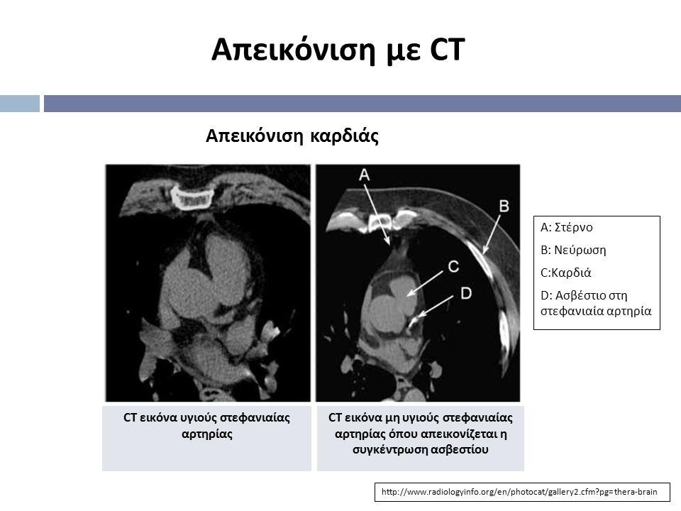 Απεικόνιση με CT Απεικόνιση καρδιάς http://www.radiologyinfo.org/en/photocat/gallery2.cfm?pg=thera-brain CT εικόνα υγιούς στεφανιαίας αρτηρίας CT εικό