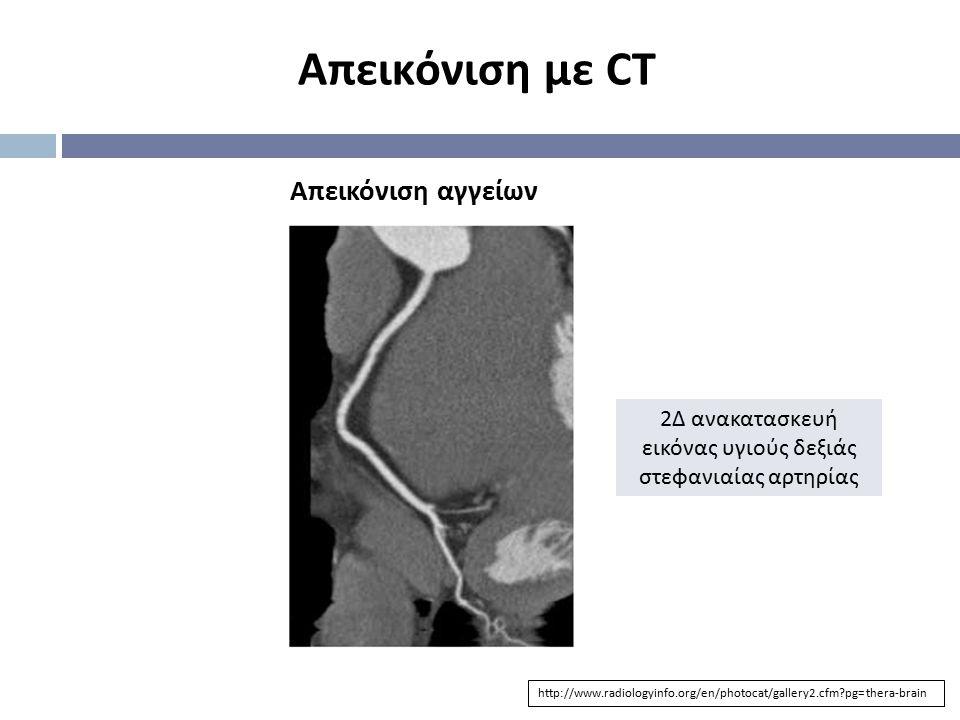 Απεικόνιση με CT Απεικόνιση αγγείων http://www.radiologyinfo.org/en/photocat/gallery2.cfm?pg=thera-brain 2 Δ ανακατασκευή εικόνας υγιούς δεξιάς στεφαν