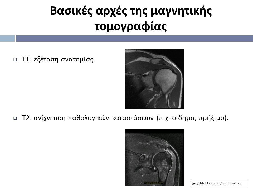  T1: εξέταση ανατομίας.  T2: ανίχνευση παθολογικών καταστάσεων (π.χ. οίδημα, πρήξιμο). Βασικές αρχές της μαγνητικής τομογραφίας garykish.tripod.com/