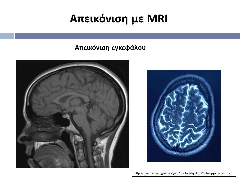 Απεικόνιση με MRI Απεικόνιση εγκεφάλου http://www.radiologyinfo.org/en/photocat/gallery2.cfm?pg=thera-brain