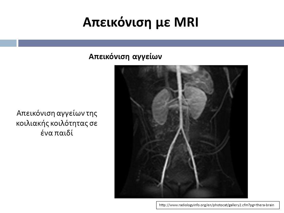 Απεικόνιση με MRI http://www.radiologyinfo.org/en/photocat/gallery2.cfm?pg=thera-brain Απεικόνιση αγγείων Απεικόνιση αγγείων της κοιλιακής κοιλότητας