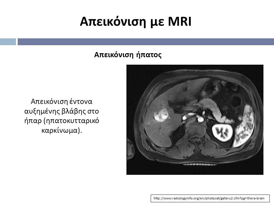 Απεικόνιση με MRI http://www.radiologyinfo.org/en/photocat/gallery2.cfm?pg=thera-brain Απεικόνιση ήπατος Απεικόνιση έντονα αυξημένης βλάβης στο ήπαρ (