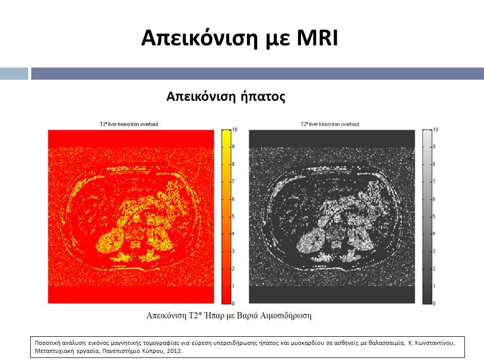 Απεικόνιση με MRI Απεικόνιση ήπατος Ποσοτική ανάλυση εικόνας μαγνητικής τομογραφίας για εύρεση υπερσιδήρωσης ήπατος και μυοκαρδίου σε ασθενείς με θαλα