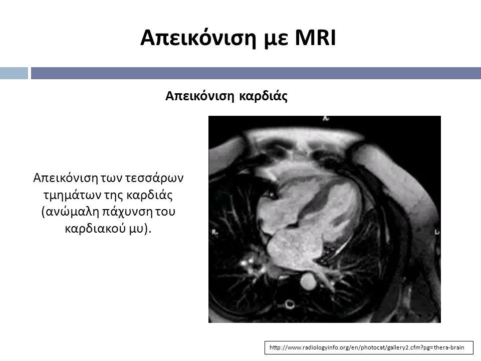 Απεικόνιση με MRI http://www.radiologyinfo.org/en/photocat/gallery2.cfm?pg=thera-brain Απεικόνιση καρδιάς Απεικόνιση των τεσσάρων τμημάτων της καρδιάς