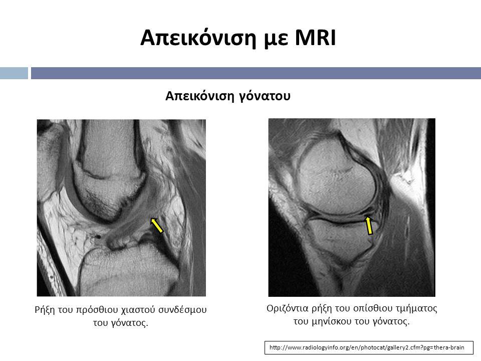 Απεικόνιση με MRI http://www.radiologyinfo.org/en/photocat/gallery2.cfm?pg=thera-brain Απεικόνιση γόνατου Οριζόντια ρήξη του οπίσθιου τμήματος του μην
