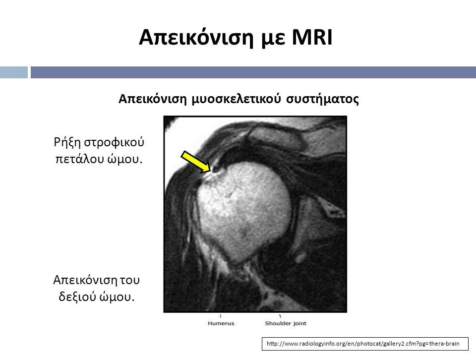 Απεικόνιση με MRI http://www.radiologyinfo.org/en/photocat/gallery2.cfm?pg=thera-brain Απεικόνιση μυοσκελετικού συστήματος Απεικόνιση του δεξιού ώμου.