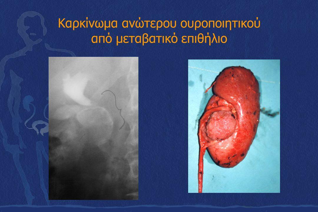 Καρκίνωμα ανώτερου ουροποιητικού από μεταβατικό επιθήλιο