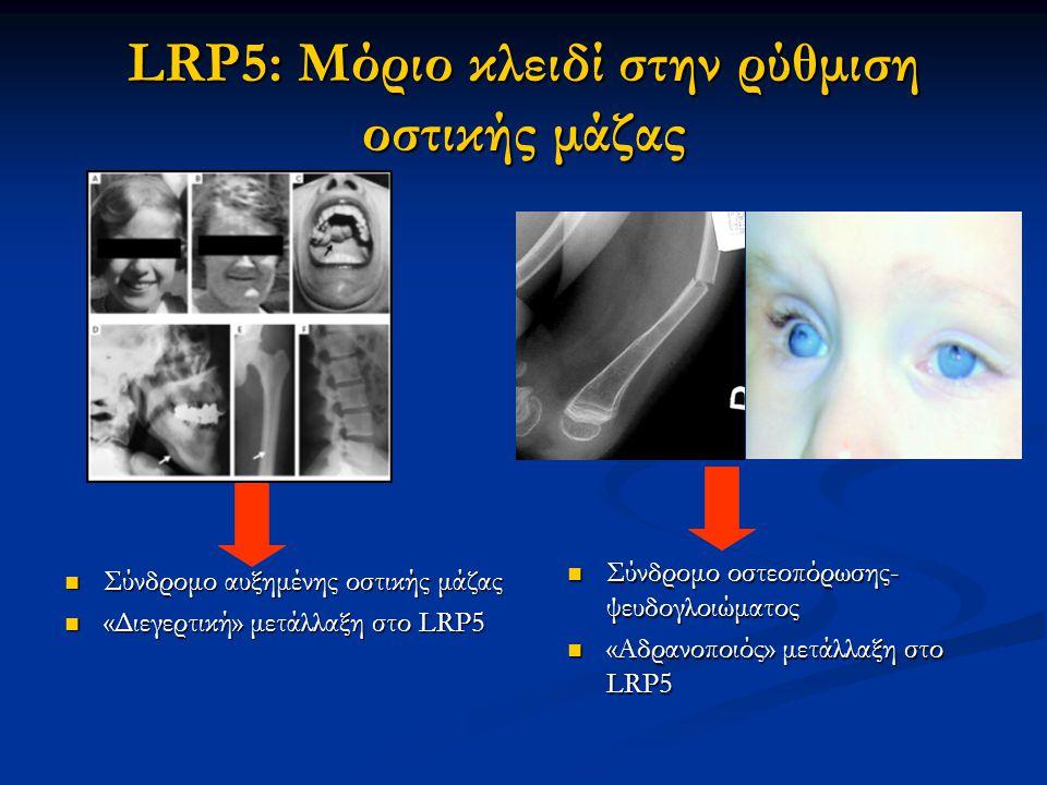 LRP5: Μόριο κλειδί στην ρύθμιση οστικής μάζας Σύνδρομο οστεοπόρωσης- ψευδογλοιώματος Σύνδρομο οστεοπόρωσης- ψευδογλοιώματος «Αδρανοποιός» μετάλλαξη στο LRP5 «Αδρανοποιός» μετάλλαξη στο LRP5 Σύνδρομο αυξημένης οστικής μάζας Σύνδρομο αυξημένης οστικής μάζας «Διεγερτική» μετάλλαξη στο LRP5 «Διεγερτική» μετάλλαξη στο LRP5